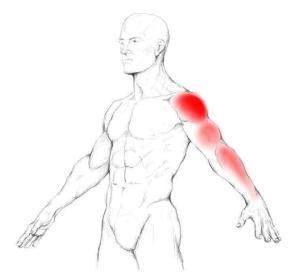 supraspinatus-trigger-point-pain